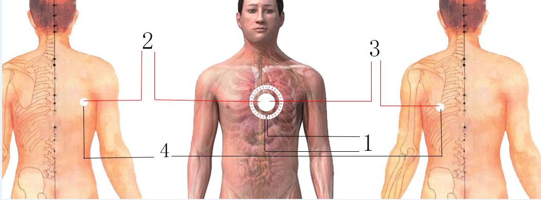 救生衣短接及捕获事故信号示意图